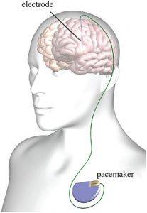 Deep brain stimulation setup.