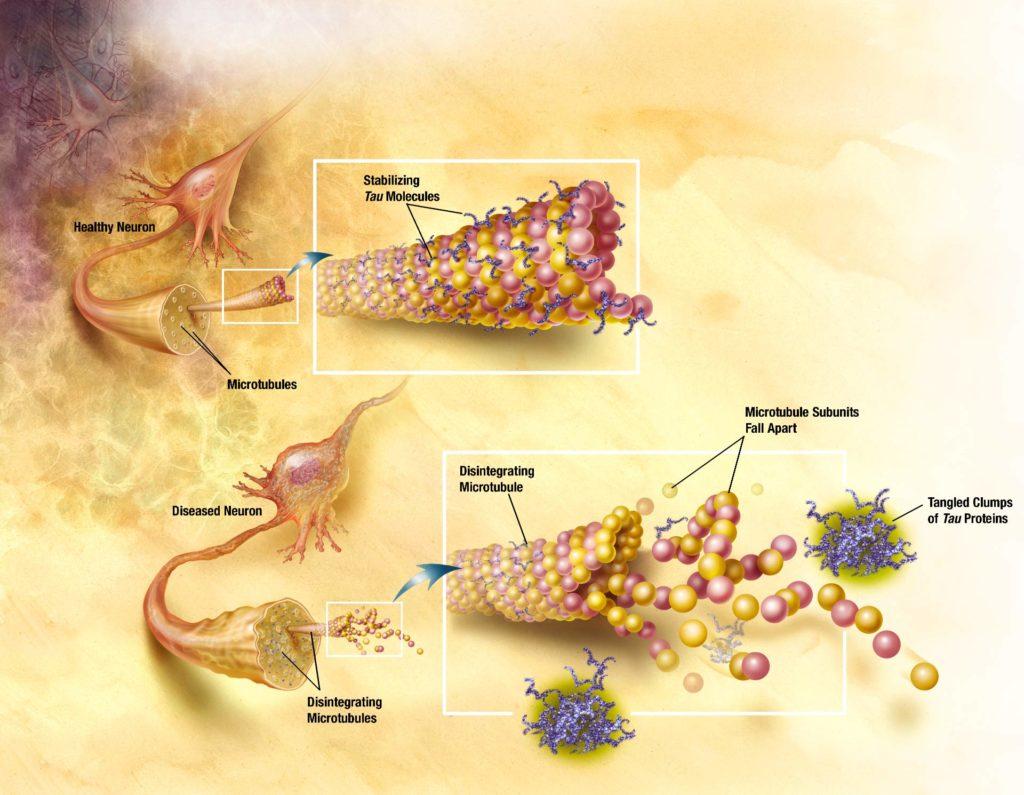 How neurofibrillary tangles form